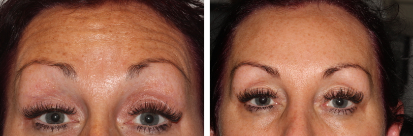 Treatment of forehead lines with bot toxin