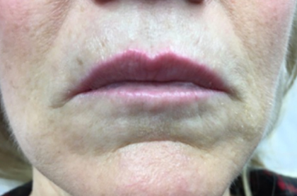 pouting before treatment showing deep lines above lips