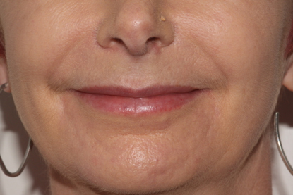 patient smiling after treatment showing softer nose to mouth lines